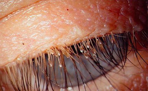 Лобковые вши могут заражать ресницы и брови человека.