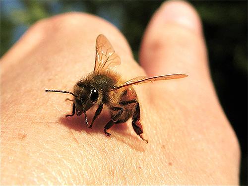 При укусах пчел прежде всего нужно удалить жало из ранки