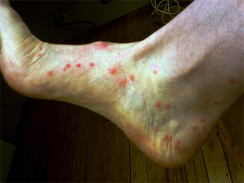 При укусе блоха впрыскивает под кожу выделения специальных желез, которые и вызывают первичную аллергическую реакцию.