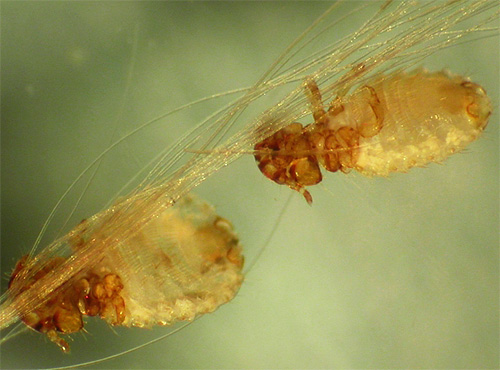 бывают ли паразиты в легких человека