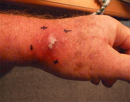 Часто укус шершня сопровождается не только отеком тканей, но и нагноением, некротизацией.