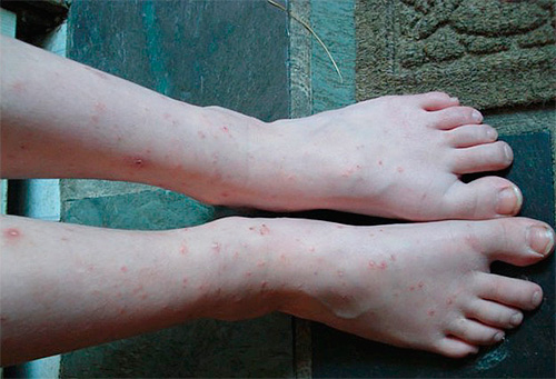 На фото показаны ноги, искусанные домашними блохами.