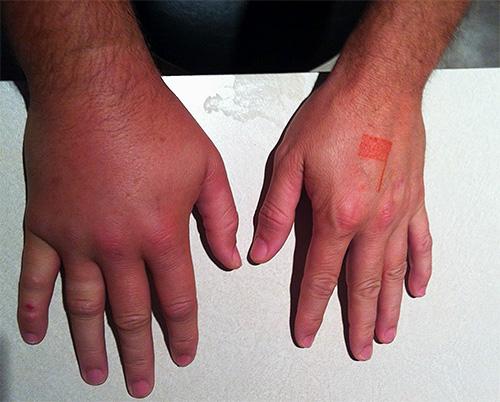 После укуса шершня пораженные ядом ткани могут сильно отекать, иногда развивается мощная аллергическая реакция.
