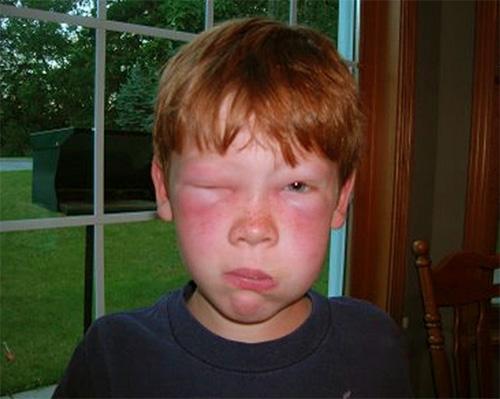 Если укус осы пришелся на лицо или шею ребенка, то реакция может быть более выраженной, чем в случае поражения рук или ног