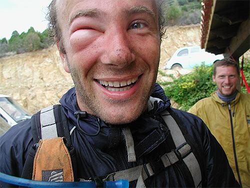 Некоторые люди с каждым новым укусом становятся все более чувствительными к яду насекомых, и это может быть опасным.
