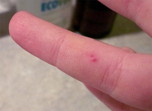 А вот чего не нужно делать после укуса насекомого - так это пытаться выдавливать яд из ранки, так как это лишь ускорит его распространение по тканям.