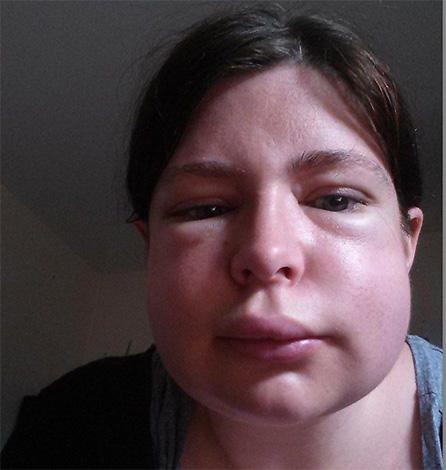 Одним из самых опасных последствий укуса осы является быстрый отек гортани, который нередко приводит к удушью.