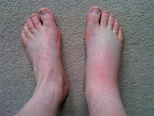 Если жалящее насекомое укусило, например, в стопу, то отек может распространиться на всю ногу
