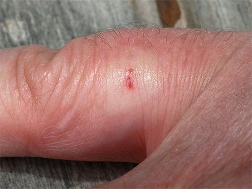 Так выглядит место укуса осы через несколько минут после ужаливания