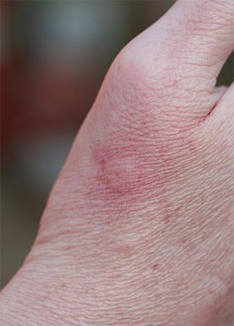 Нормальной реакцией на укус осы является небольшое локальное покраснение и легкий отек.