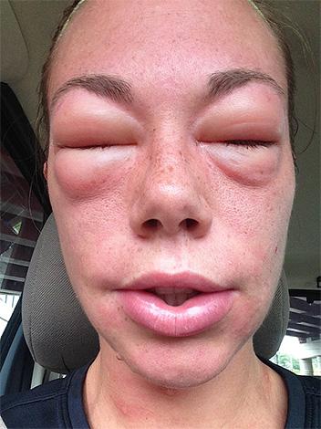 Срочно обращаться за врачебной помощью нужно в том случае, если после укуса осы самочувствие все продолжает ухудшаться.