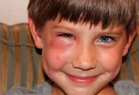 Как правило, при укусе шершня специального лечения не требуется, и последствия проходят сами уже в течение нескольких дней.
