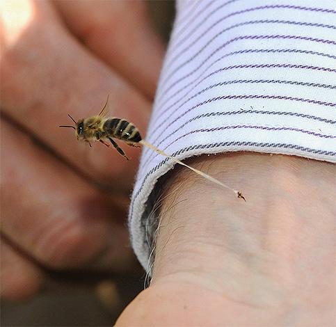 При укусах некоторых насекомых эффективность мазей и кремов может быть недостаточной, что в значительной мере зависит и от самого человека.