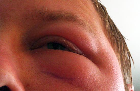 Чувствительность человека к укусам ос может увеличиваться с каждым последующим нападением этих насекомых.