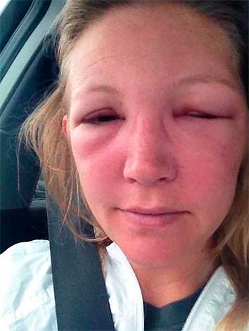 При высокой чувствительности человека к яду перепончатокрылых насекомых могут наблюдаться весьма тяжелые и опасные аллергические реакции.
