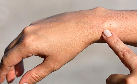 Оказывать первую помощь при укусе осы следует сразу же, не тратя драгоценные минуты на эмоции.