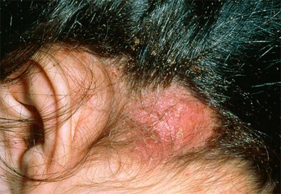При большом количестве вшей на коже головы могут появляться коросты.
