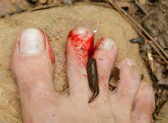 Пиявка присосалась к пальцу на ноге человека.