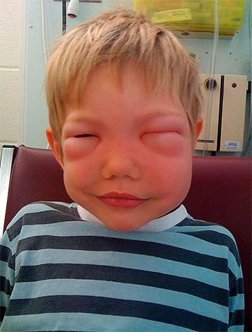 сильная реакция на укусы комаров что делать