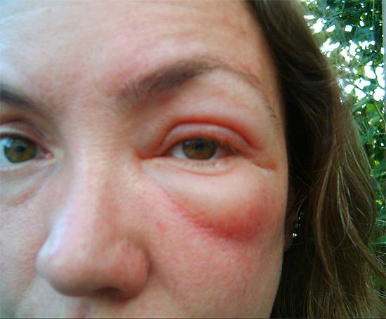 В зависимости от степени тяжести аллергической реакции, возникает умеренный или весьма выраженный отек тканей.