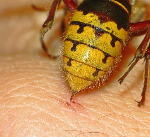 Укус осы и его последствия, чем он опасен и каковы возможные осложнения