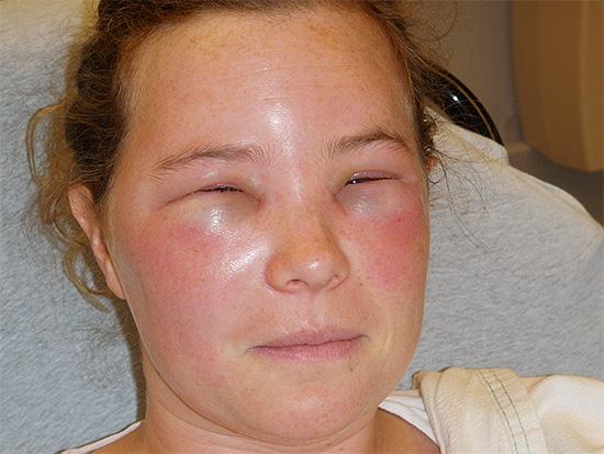 Для сенсибилизированных людей укусы перепончатокрылых насекомых особенно опасны.