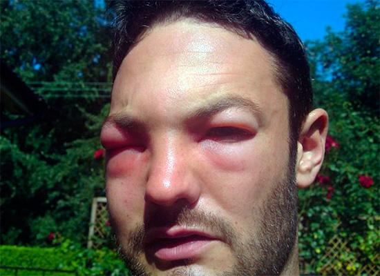 Укусы ос в лицо могут привести не только к закрытию обоих глаз, но и в целом могут иметь повышенную опасность для жизни человека.