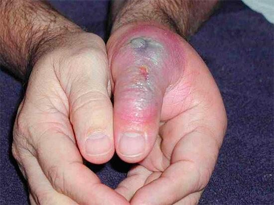 Без должного лечения последствия укусов ядовитых пауков могут быть весьма тяжелыми...