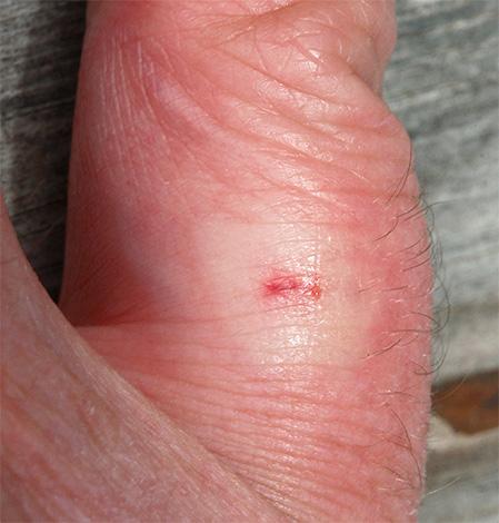 Укус осы в палец