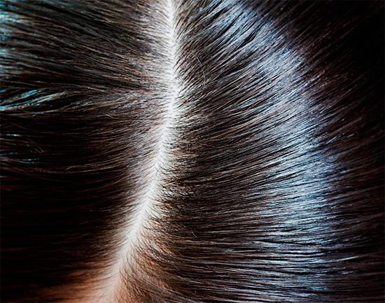 После процедуры в волосах не будет даже сухих гнид.