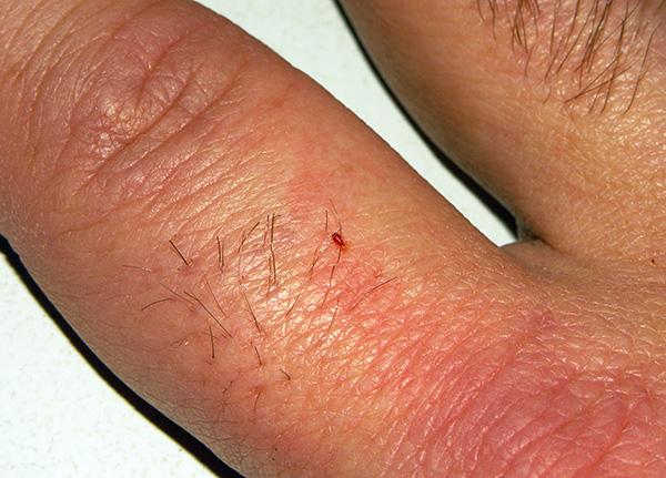 Личинка постельного клопа пьет кровь.