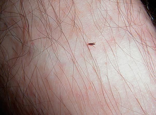 Блоха на коже человека