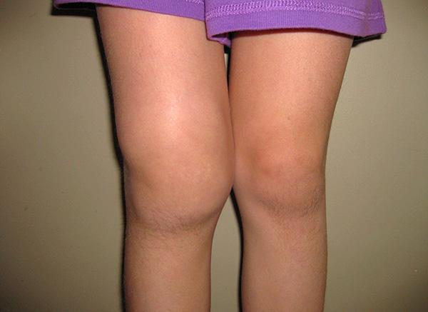 Лайм-артрит иногда приводит к сильному поражению крупных суставов.