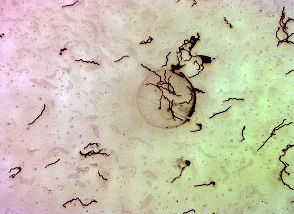 Borrelia burgdorferi под микроскопом (при 400-кратном увеличении).