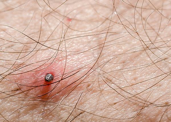 Чем дольше паразит продолжает сосать кровь, тем больше инфицированной слюны он вводит в ранку.