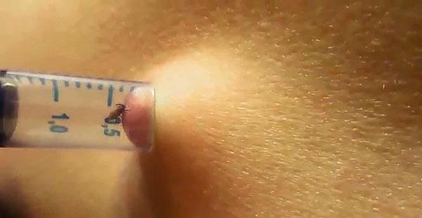 Пример извлечения клеща с помощью шприца