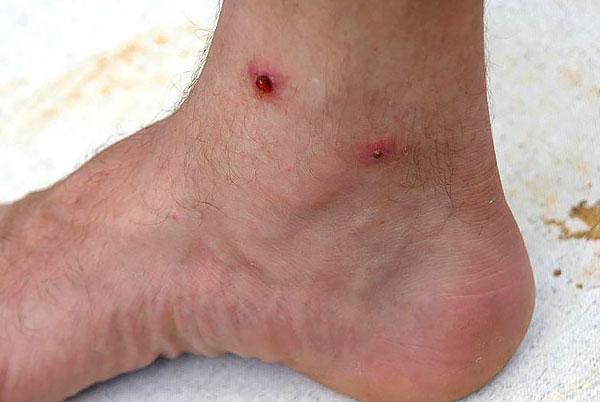 Нагноившиеся и воспаленные места укусов долго болят и могут стать источниками распространения бактериальной инфекции в организме.