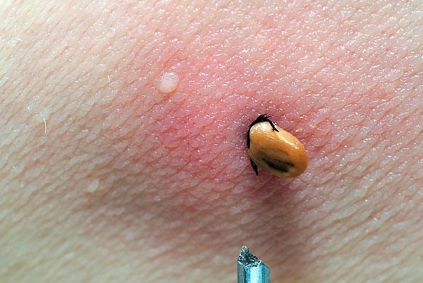 При укусе клещ погружает голову очень глубоко в ткани и удерживается настолько крепко, что бывает легче оторвать его тело от головы, чем выдернуть паразита из кожи.