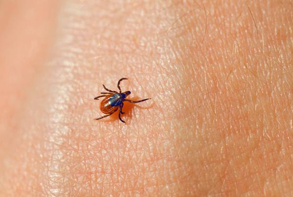Заражение клещевым энцефалитом происходит через укус паразита, а при простом контакте с кожей вирус не передается.