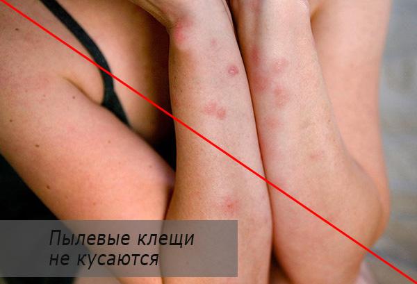 Пылевые клещи не кусают человека и домашних животных