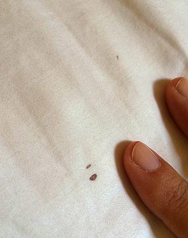 Маленькие пятна крови на постельном белье зачастую помогают подтвердить наличие клопов в доме.
