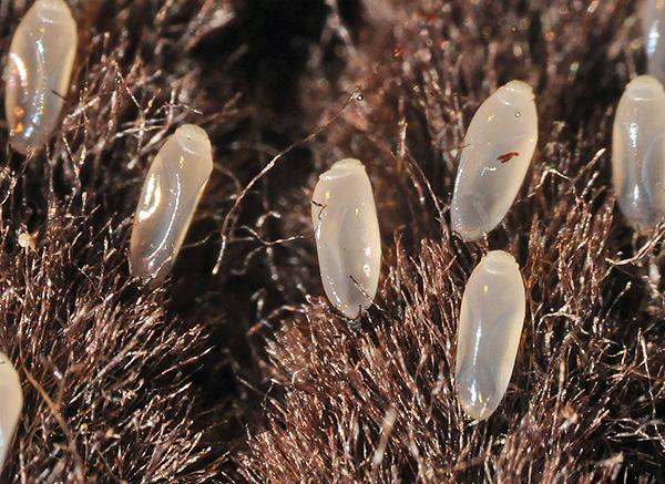 Гниды бельевых вшей на одежде