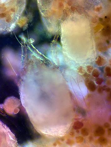 Фекалии этих членистоногих способны вызывать у человека сильные аллергические реакции.