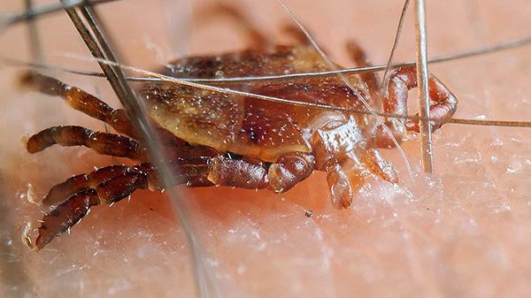 Заражение возможно лишь при укусе паразита, а если он просто прополз по коже - это безопасно.