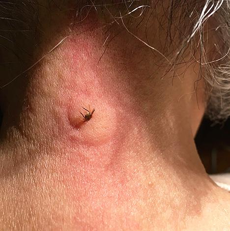 На месте укуса клеща нередко формируется зудящая шишка.