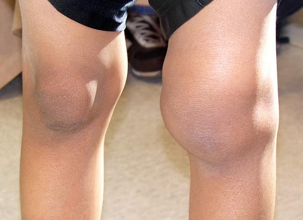 Последствия артрита, развившегося из-за Лайм-боррелиоза