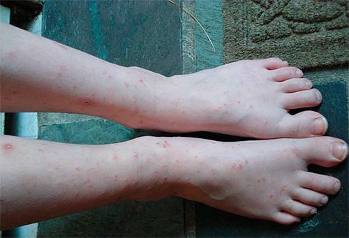 Множественные укусы блох у детей часто сопровождаются сыпью
