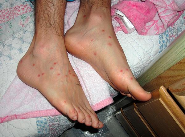 Если такие укусы расчесывать, то есть риск занести в ранку инфекцию.
