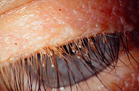 А вот так выглядят гниды на ресницах человека