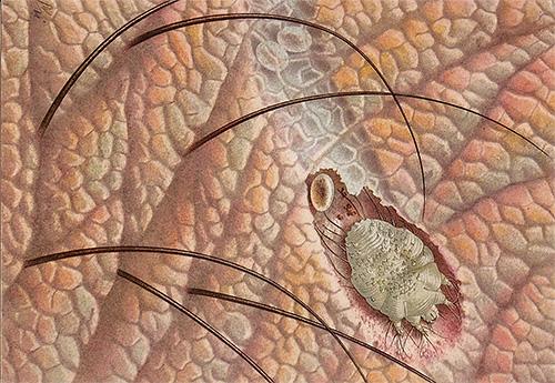 Возбудителя чесотки - чесоточного клеща - нельзя разглядеть без микроскопа